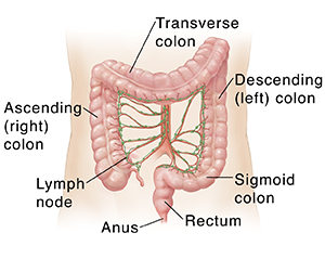 rectal cancer in lymph nodes
