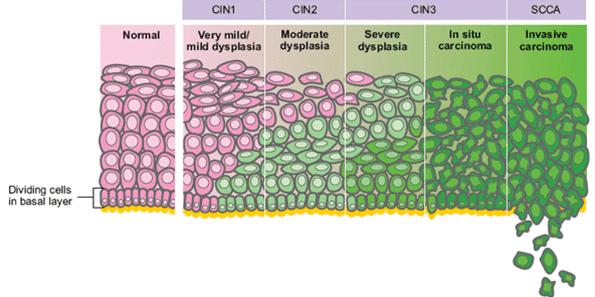 cervical cancer cin 2)