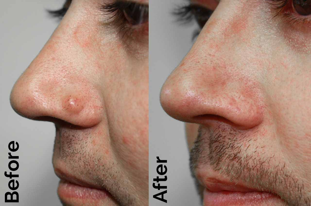hpv warts in nose)