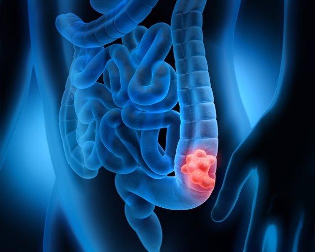 cancer de colon que hacer)