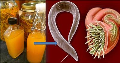 medicina natural contra los oxiuros