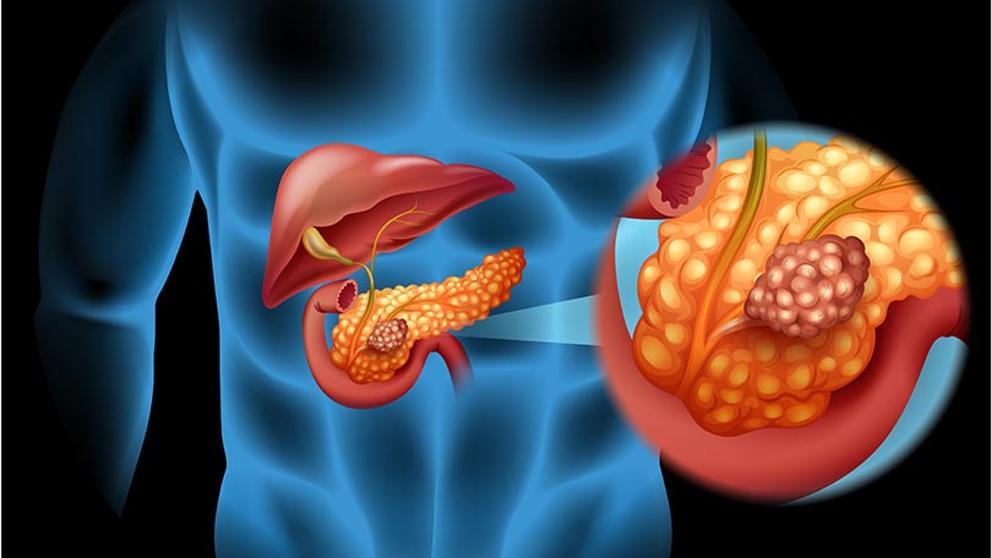 cancer de pancreas con metastasis en higado)