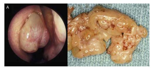 papiloma humano nasal