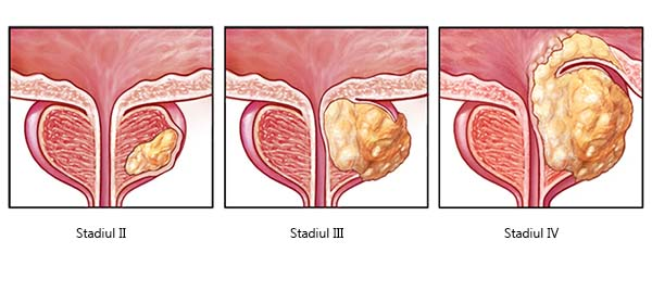 dimensiunile prostatei normale