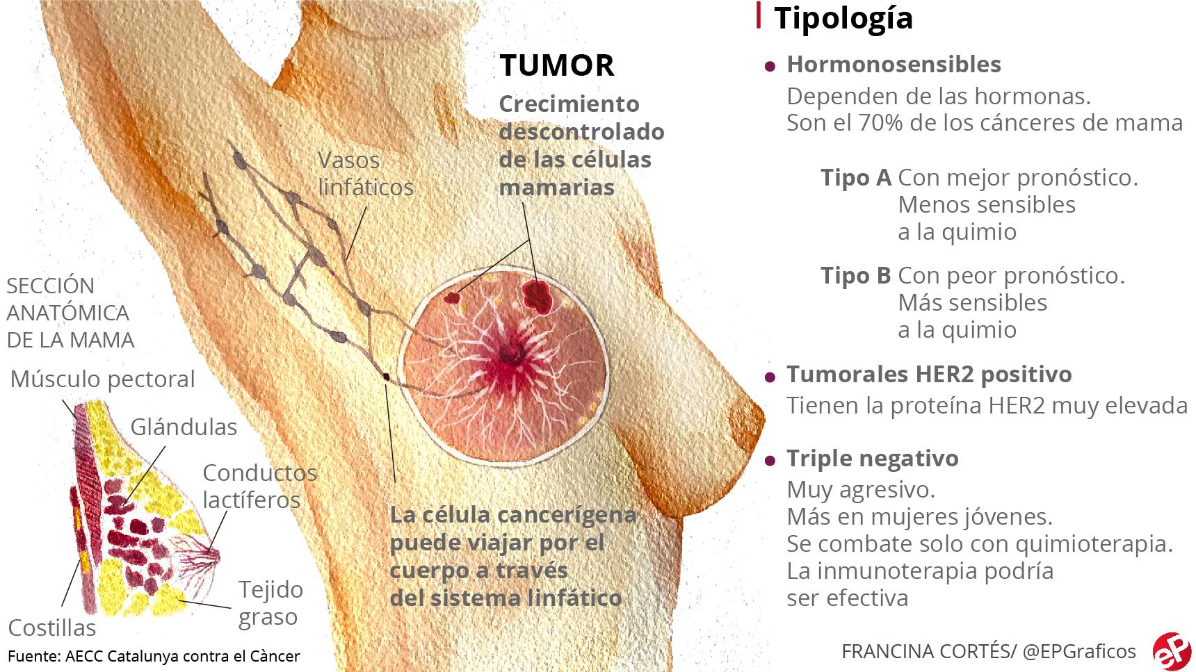 cancer hormonal de pecho
