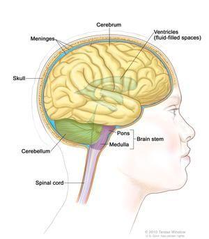 cancer cerebral etapa final)