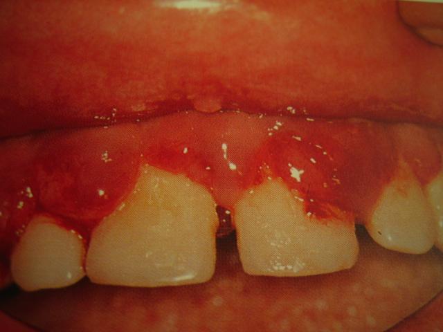cancerul de planseu bucal tratament)
