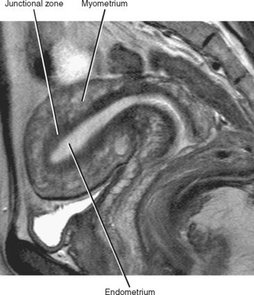 endometrial cancer junctional zone