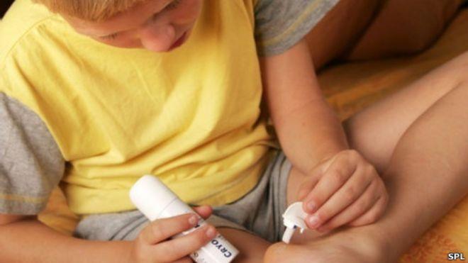 papilloma virus esame citologico papillomas warts