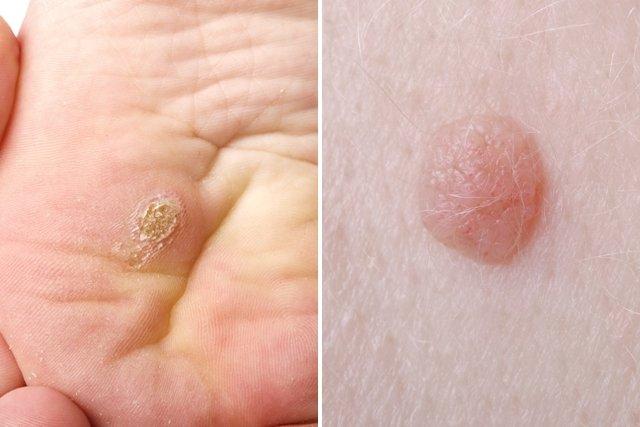 virus del papiloma humano en hombres sin sintomas)