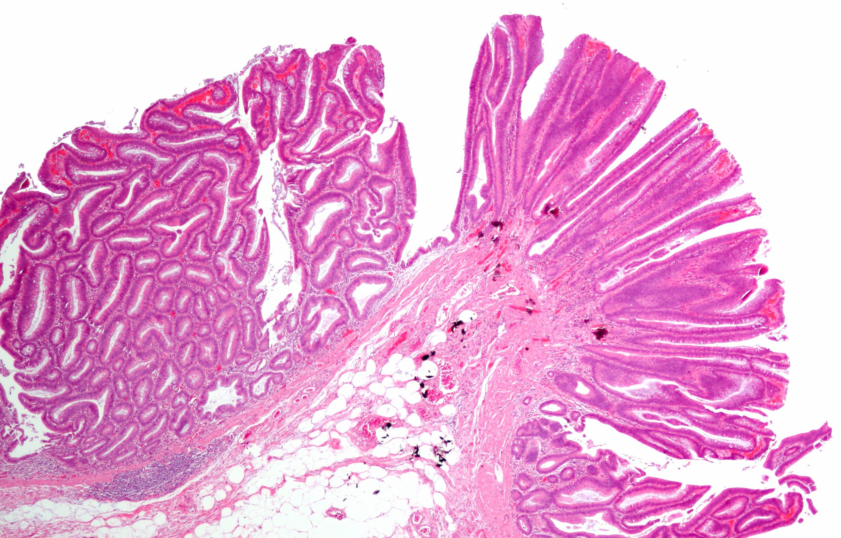 Cancerul de col uterin   ARAS – Asociatia Romana Anti-SIDA