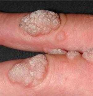 human papilloma virus korunma yollar?
