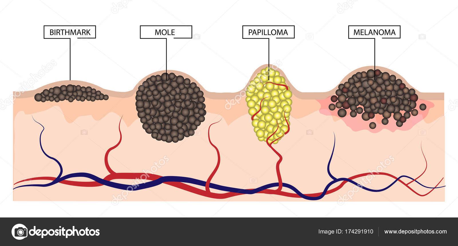 papilloma and moles