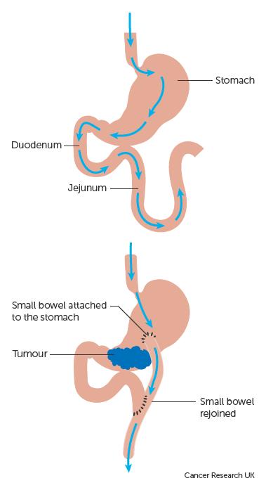 abdominal cancer surgery