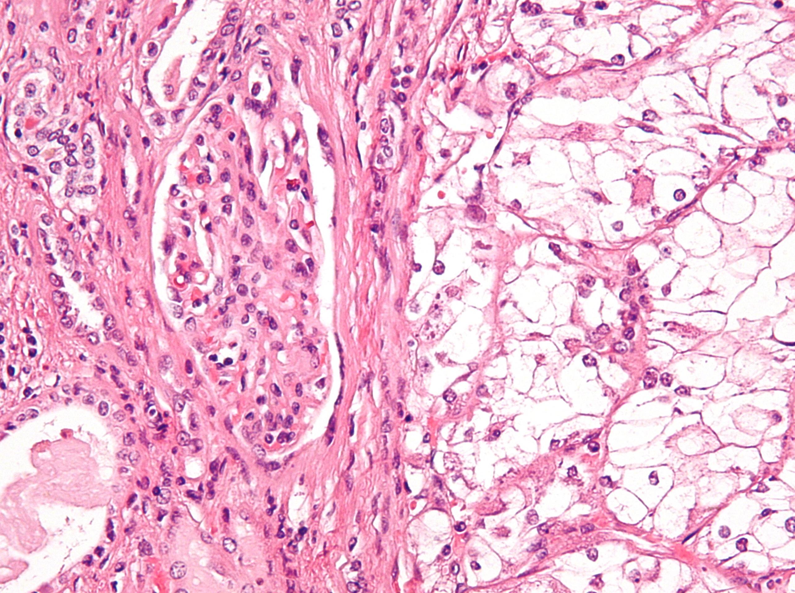 Cancerul renal | Spitalul Monza