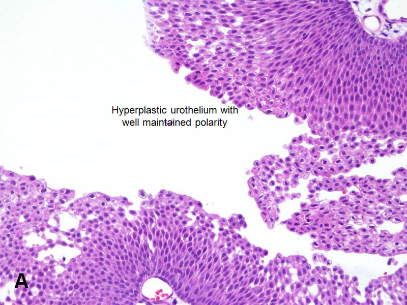 papillary urothelial lesion of low malignant potential)