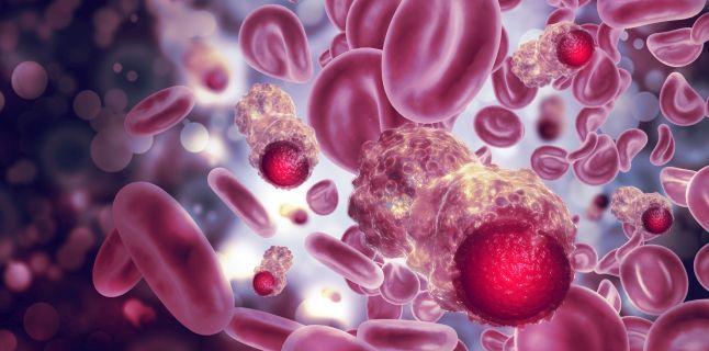 cancer sange cauze)