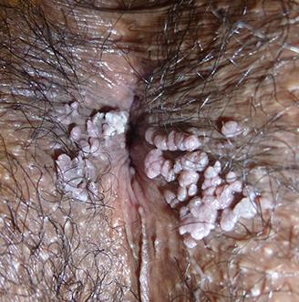 Syphilis - Planete sante