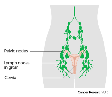 uterine cancer jaundice)