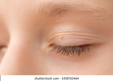 eye papilloma pictures)