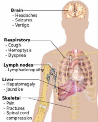 metastatic cancer homeopathy