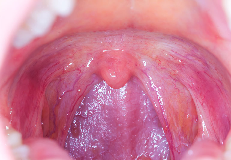 hpv virus and sore throat