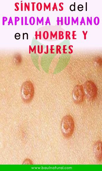 papiloma humano y sintomas cancer and genetic research