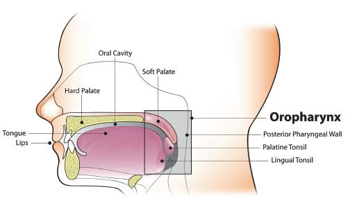 head and neck cancer caused by hpv)