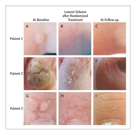 squamous papilloma of the esophagus hpv vaccine jab