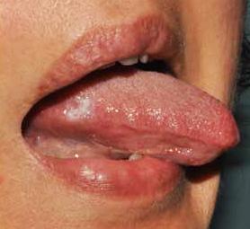 lesione papilloma della lingua)