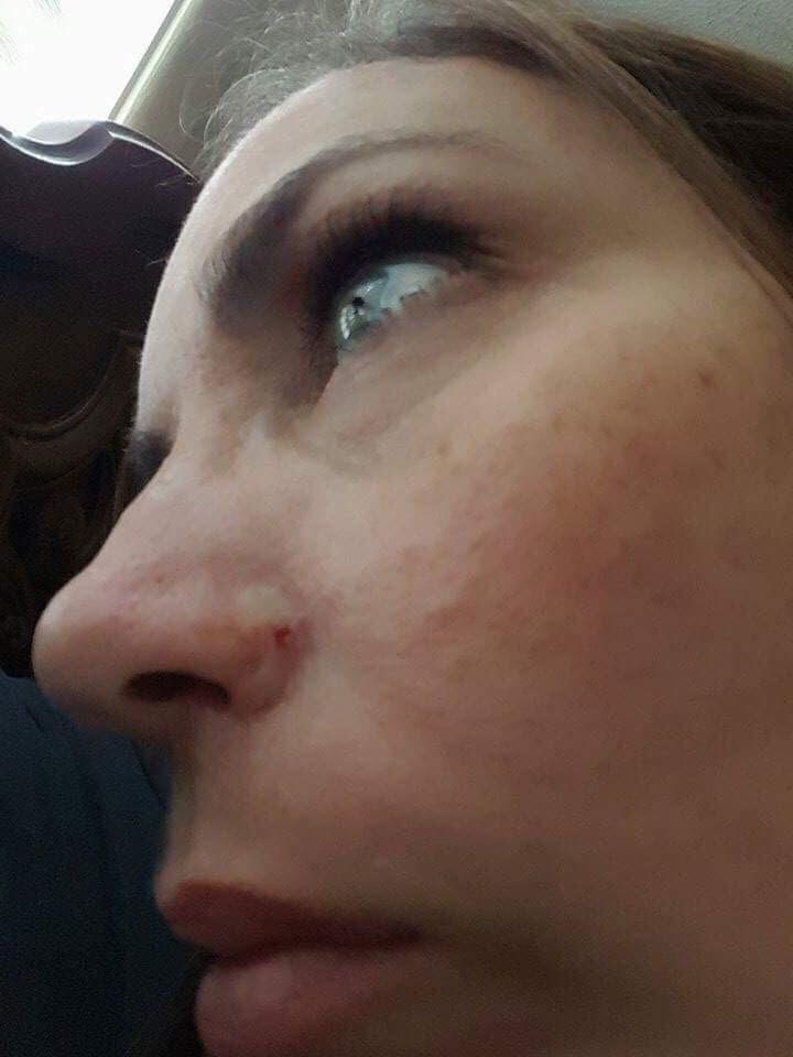 cancer inside tip of nose)