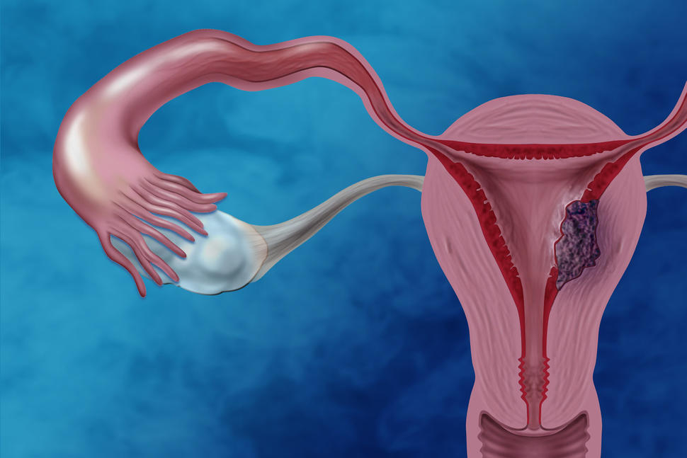 uterine cancer effects