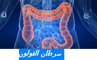 cancer colon jaunisse