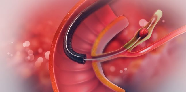 Hemoroizi - cauze, simptome si tipuri de hemoroizi