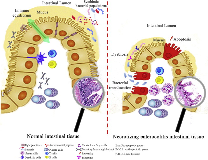 dysbiosis in the gut