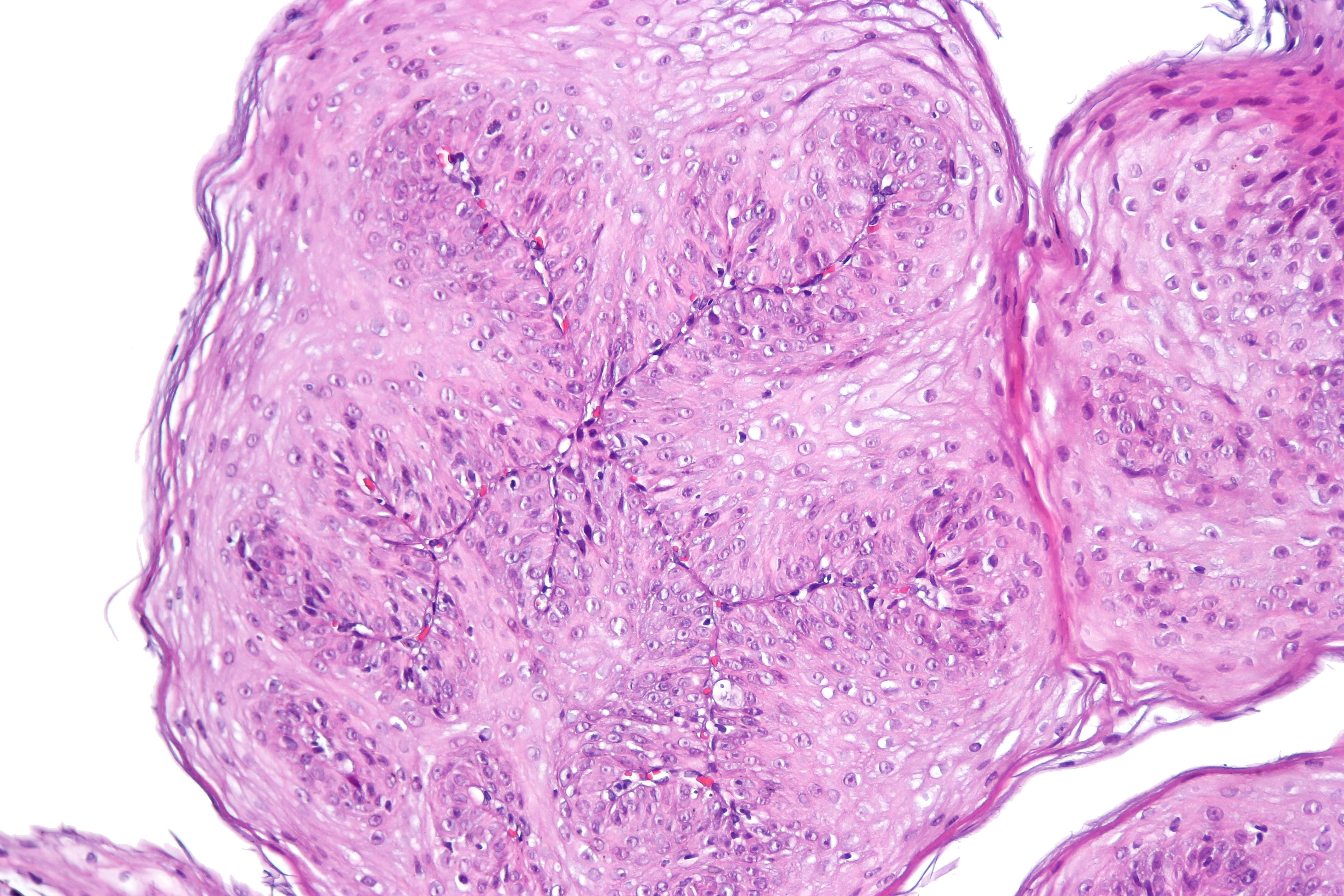 squamous papilloma esophagus location)