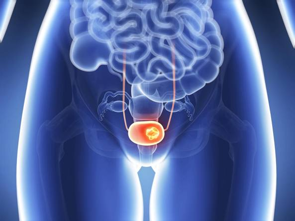 cancer de piele faza incipienta parazitii prima piesa