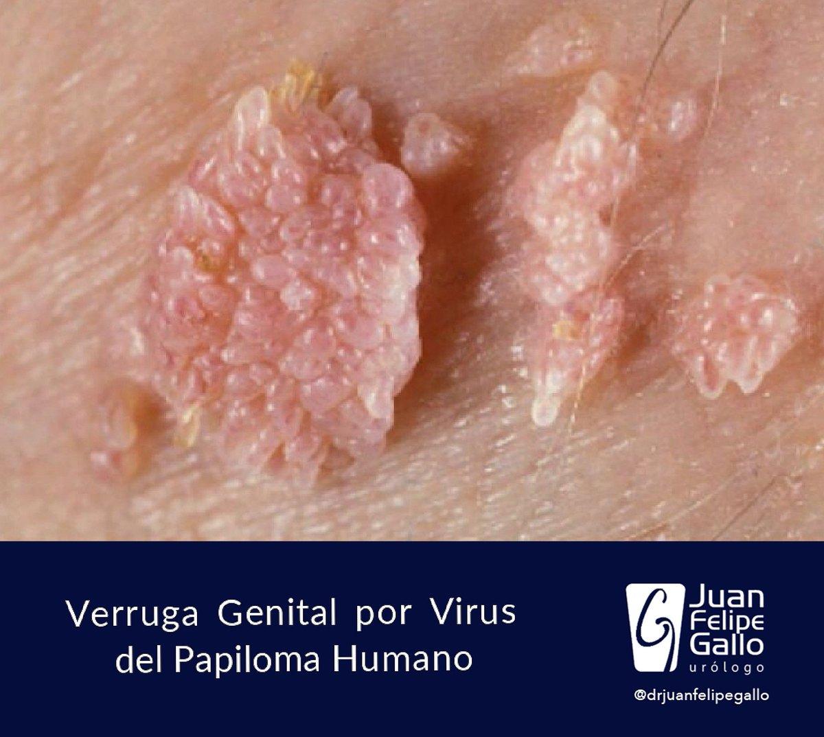 que es papiloma virus humano pvh)