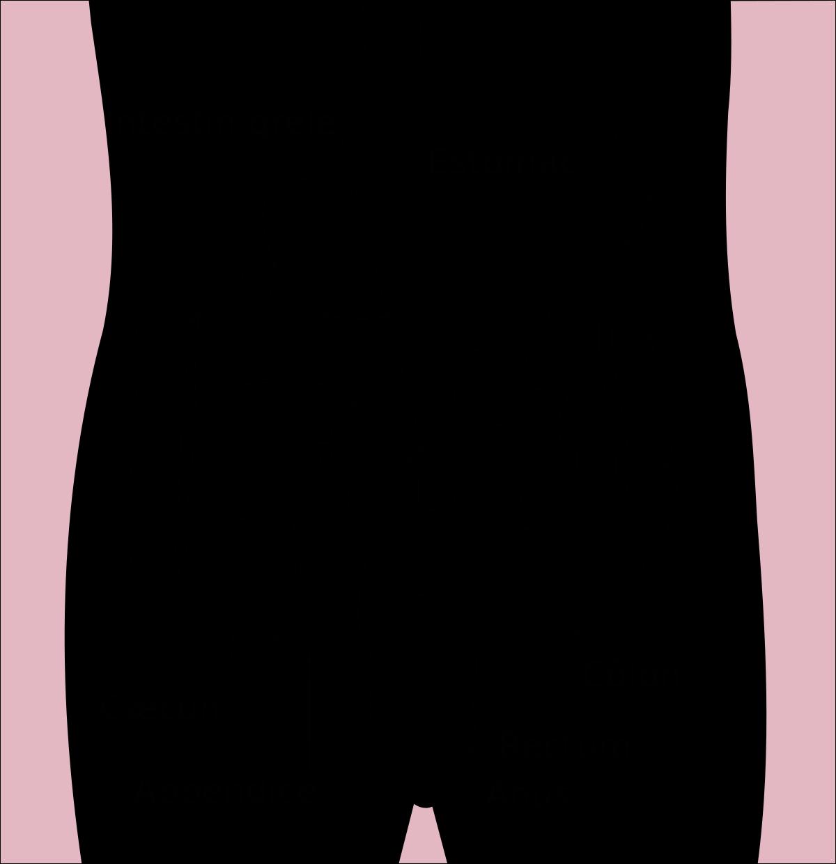 cancer du gros intestin stade 4)