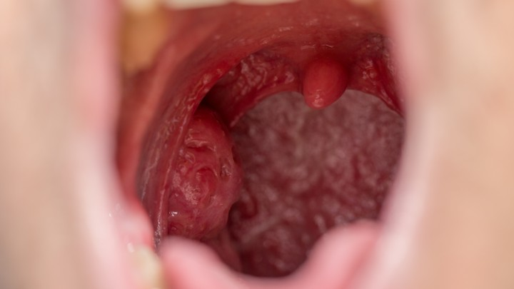 hpv cancer of the tonsils
