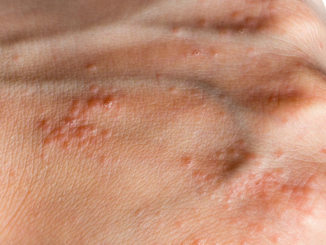 does hpv virus cause acne cancerul pielii