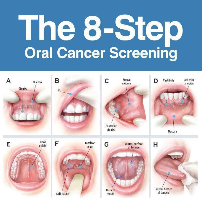 oropharyngeal cancer hpv)