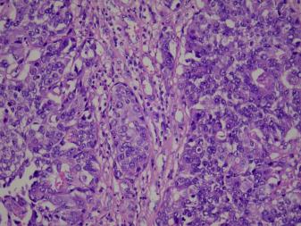 papillary urothelial carcinoma metastasis)