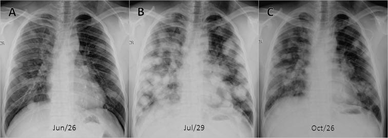 endometrial cancer lung metastasis