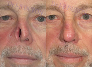 cancer inside tip of nose