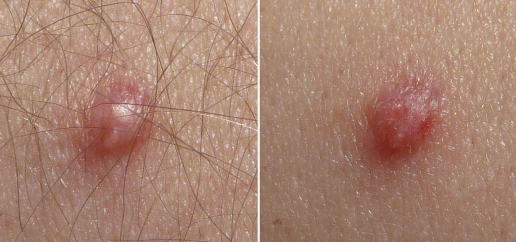papilloma virus si attacca con la saliva papilloma virus nella vescica