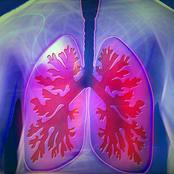 cancer pulmonar stadiul 4 speranta de viata