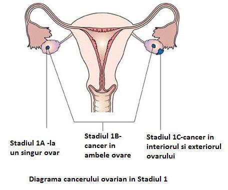 cancer ovarian stadiul 3 vindecat papilloma planoepitheliale