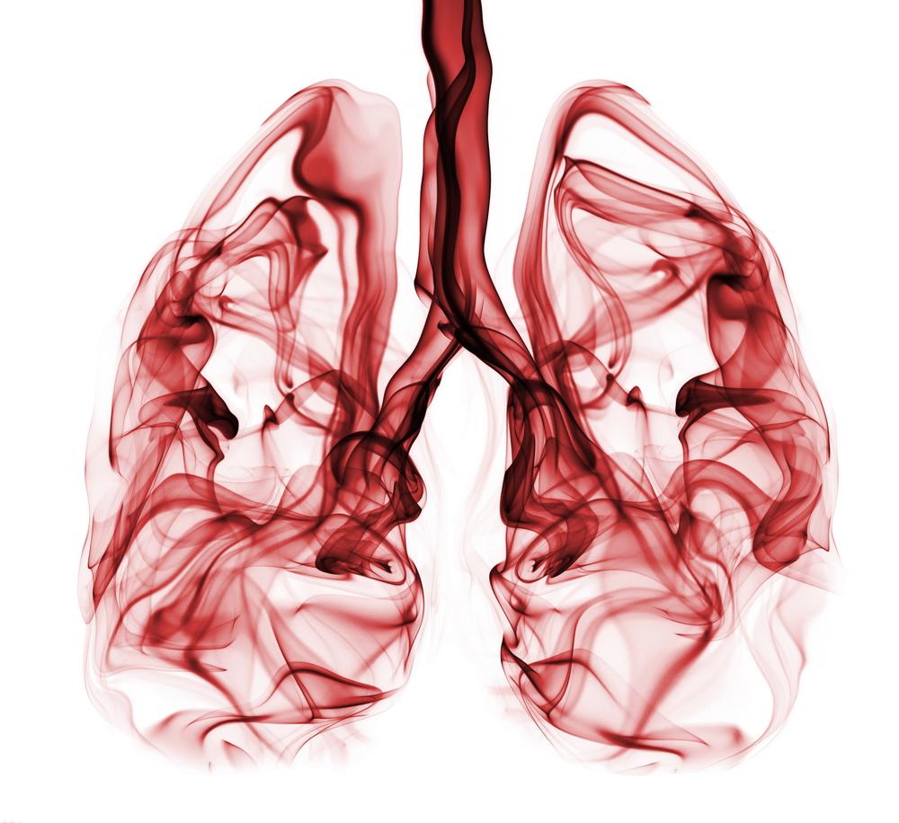 hpv gola febbre papillary lesion icd 10