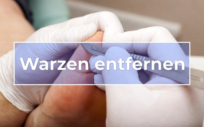 WARZE - Definiția și sinonimele Warze în dicționarul Germană